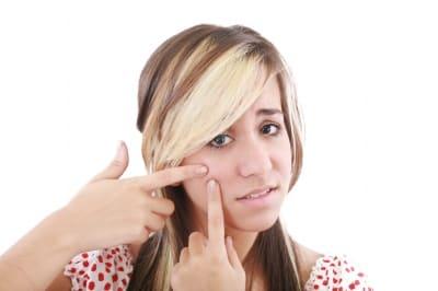 Comment se débarrasser de l'acné rosacé