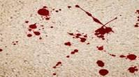 Comment enlever nettoyer une tâche de sang